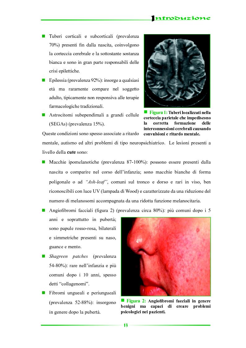 Anteprima della tesi: Espressione selettiva della survivina e sua regolazione nella Sclerosi Tuberosa, una patologia multisistemica, Pagina 8