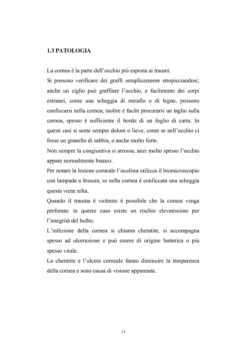 Anteprima della tesi: Studio del profilo di espressione genica in cornee sane ed in cornee affette da cheratocono., Pagina 10