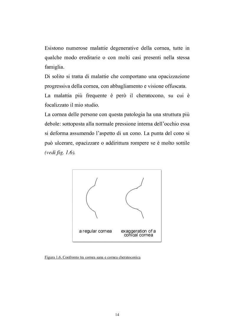 Anteprima della tesi: Studio del profilo di espressione genica in cornee sane ed in cornee affette da cheratocono., Pagina 11