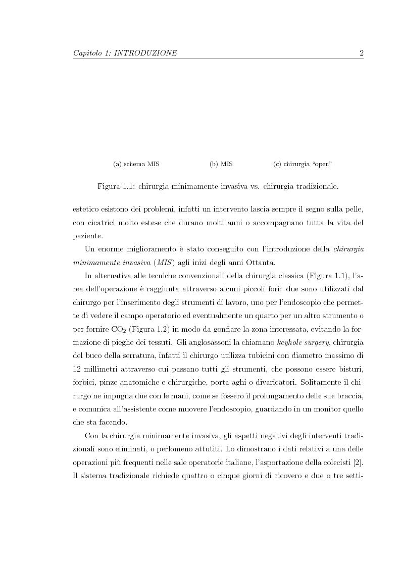 Anteprima della tesi: Chirurgia robotica minimamente invasiva: stato dell'arte e progetto di un video-laparoscopio stereo, Pagina 3