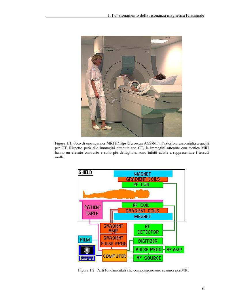 Anteprima della tesi: Un nuovo approccio di utilizzo della trasformata wavelet ridondante per l'analisi dei dati fMRI, Pagina 4