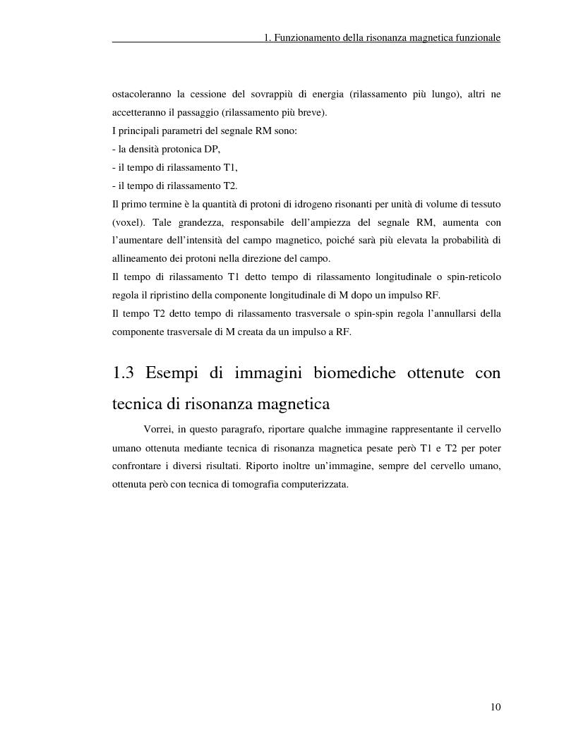 Anteprima della tesi: Un nuovo approccio di utilizzo della trasformata wavelet ridondante per l'analisi dei dati fMRI, Pagina 8