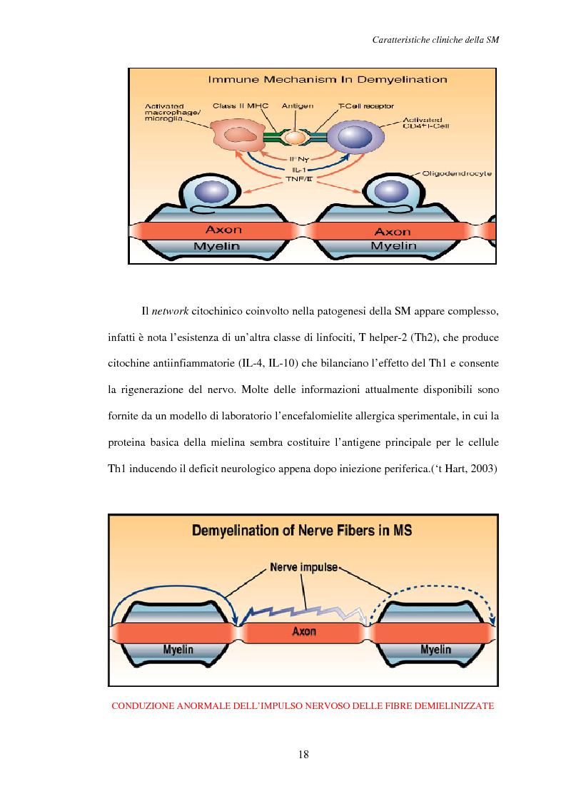 Anteprima della tesi: Aspetti psicosociali nei pazienti affetti da sclerosi multipla - Ruolo dei caregivers e dei supporti esterni. Trattamenti integrati per migliorare la qualità della vita, Pagina 9