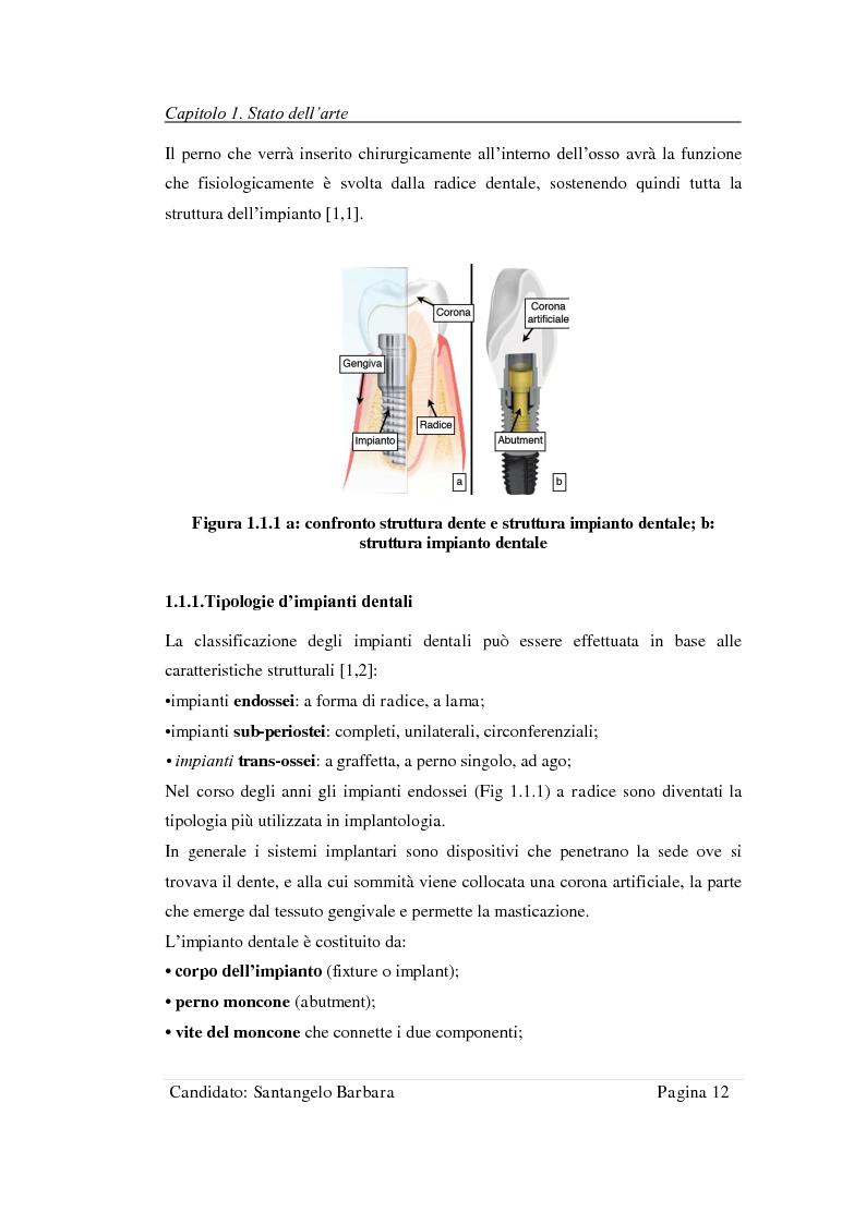Anteprima della tesi: Studio della stabilità primaria di perni dentali innovativi inseriti con tecnologia Piezosurgery, Pagina 10