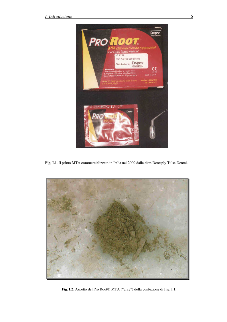 Anteprima della tesi: Il Mineral Trioxide Aggregate: analisi chimico-fisica, batteriologica e applicazioni cliniche, Pagina 4