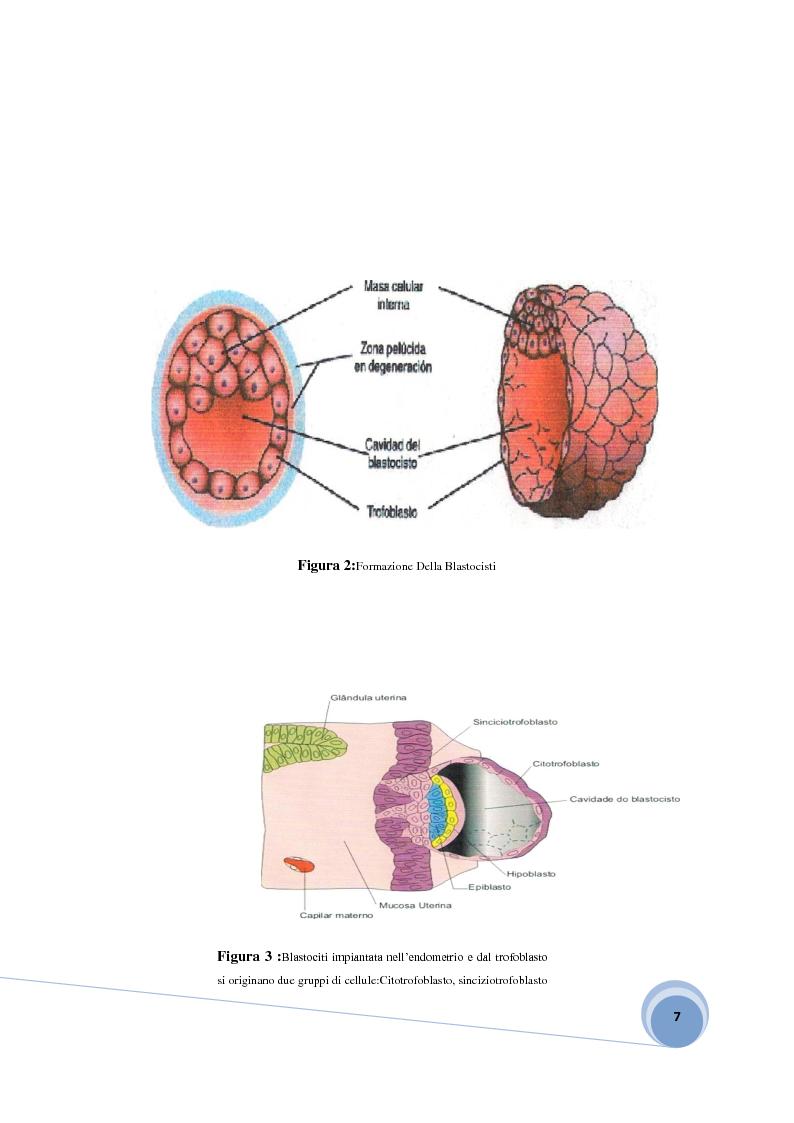Anteprima della tesi: Fisiopatologia e aspetto immunoistochimico della mola vescicolare, Pagina 5