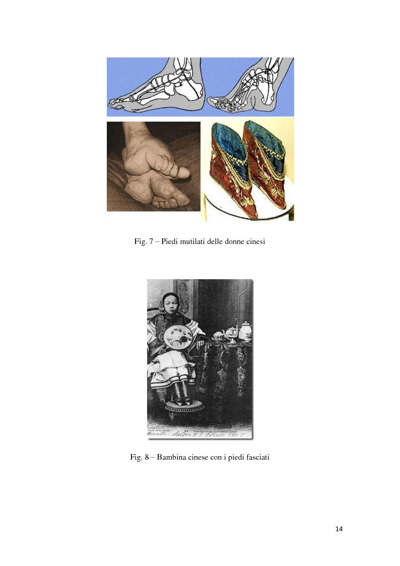 Anteprima della tesi: ''Formosamente Anoressica''. L'insostenibile leggerezza di essere donna, Pagina 8