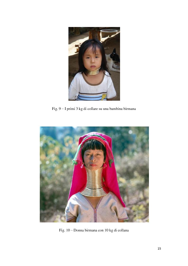 Anteprima della tesi: ''Formosamente Anoressica''. L'insostenibile leggerezza di essere donna, Pagina 9
