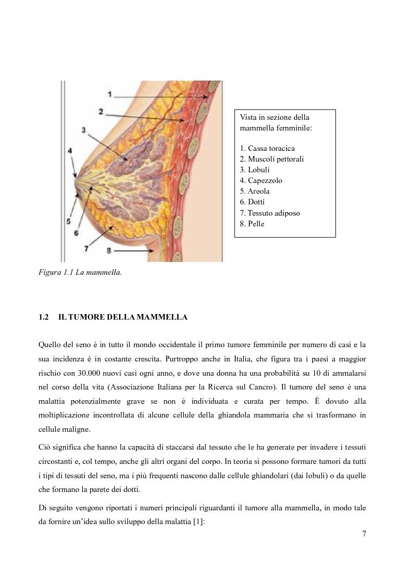 Anteprima della tesi: Analisi della fattibilità e valutazione del rischio di tecniche diagnostiche basate su radar UWB per l'individuazione del tumore al seno, Pagina 4