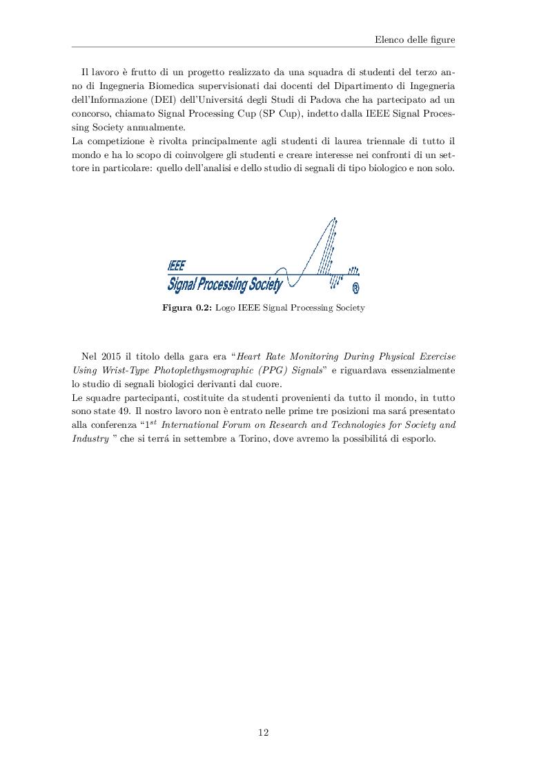 Anteprima della tesi: Analisi spettrale di un segnale fotopletismografico (PPG) per lo sviluppo di un algoritmo di stima del battito cardiaco basato sul filtro di Kalman, Pagina 4