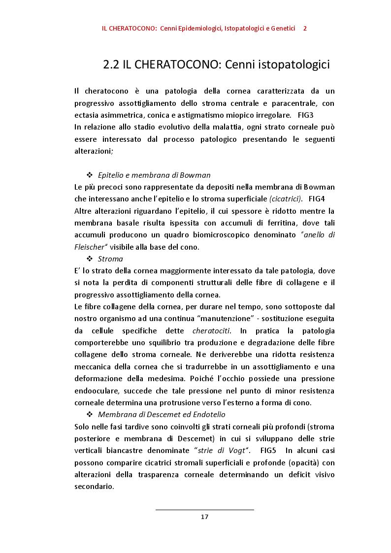 Estratto dalla tesi: Incidenza e Prevalenza del cheratocono quale motivo di non idoneità al servizio militare (E.I) in un campione omogeneo di 40428 candidati.