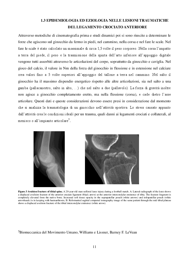 Estratto dalla tesi: Assistenza Infermieristica nella Traumatologia del Legamento Crociato Anteriore