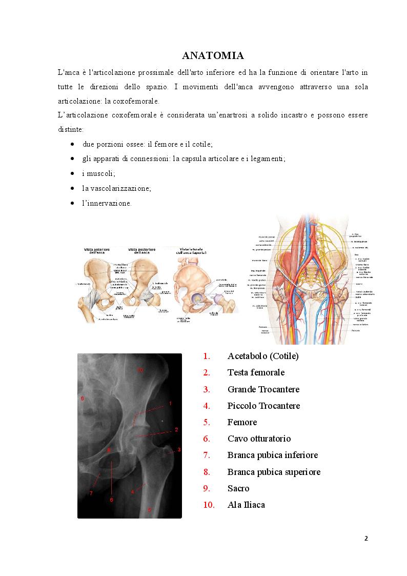 Anteprima della tesi: Strategie cliniche nelle fratture del collo femore dell'anziano: confronto tra due metodiche chirurgiche, Pagina 3