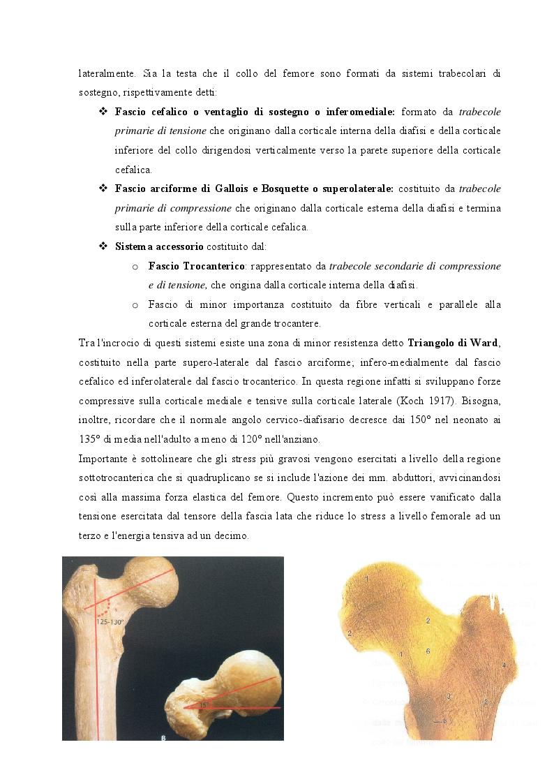 Anteprima della tesi: Strategie cliniche nelle fratture del collo femore dell'anziano: confronto tra due metodiche chirurgiche, Pagina 5