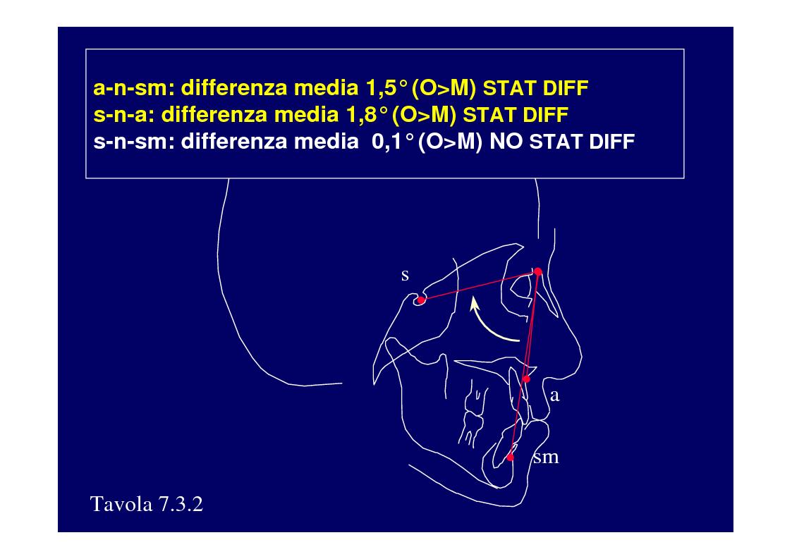 Anteprima della tesi: La crescita cranio-facciale nei pazienti affetti da labiopalatoschisi monolaterale completa: studio multicentric, Pagina 9