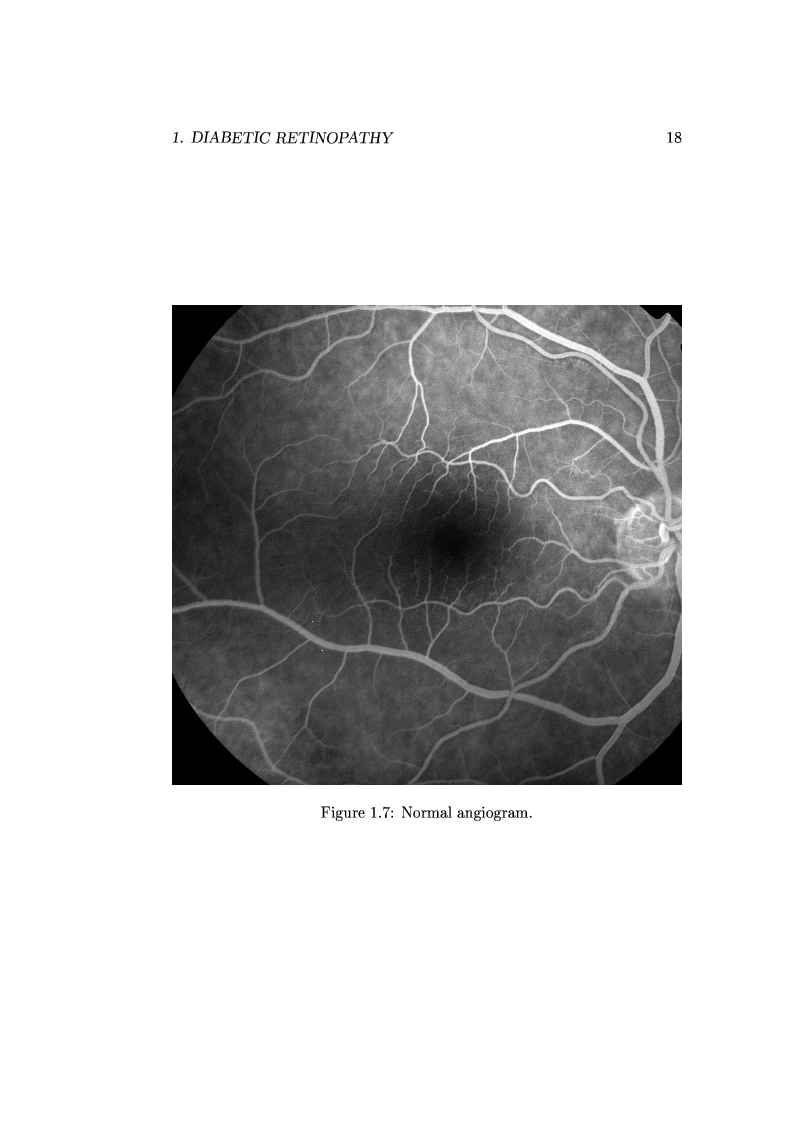 Anteprima della tesi: Computer Aided Diagnosis in Ocular Fundus Imaging, Pagina 14