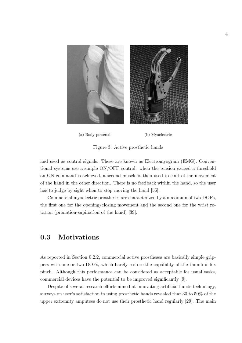 Anteprima della tesi: Hand prosthesis design: Enhancing grasping capabilities through mechanical features, Pagina 4