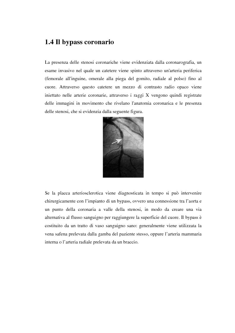 Anteprima della tesi: Sviluppo di un dispositivo ad infrarossi per misure in vivo di temperatura per applicazioni cardiochirurgiche, Pagina 8