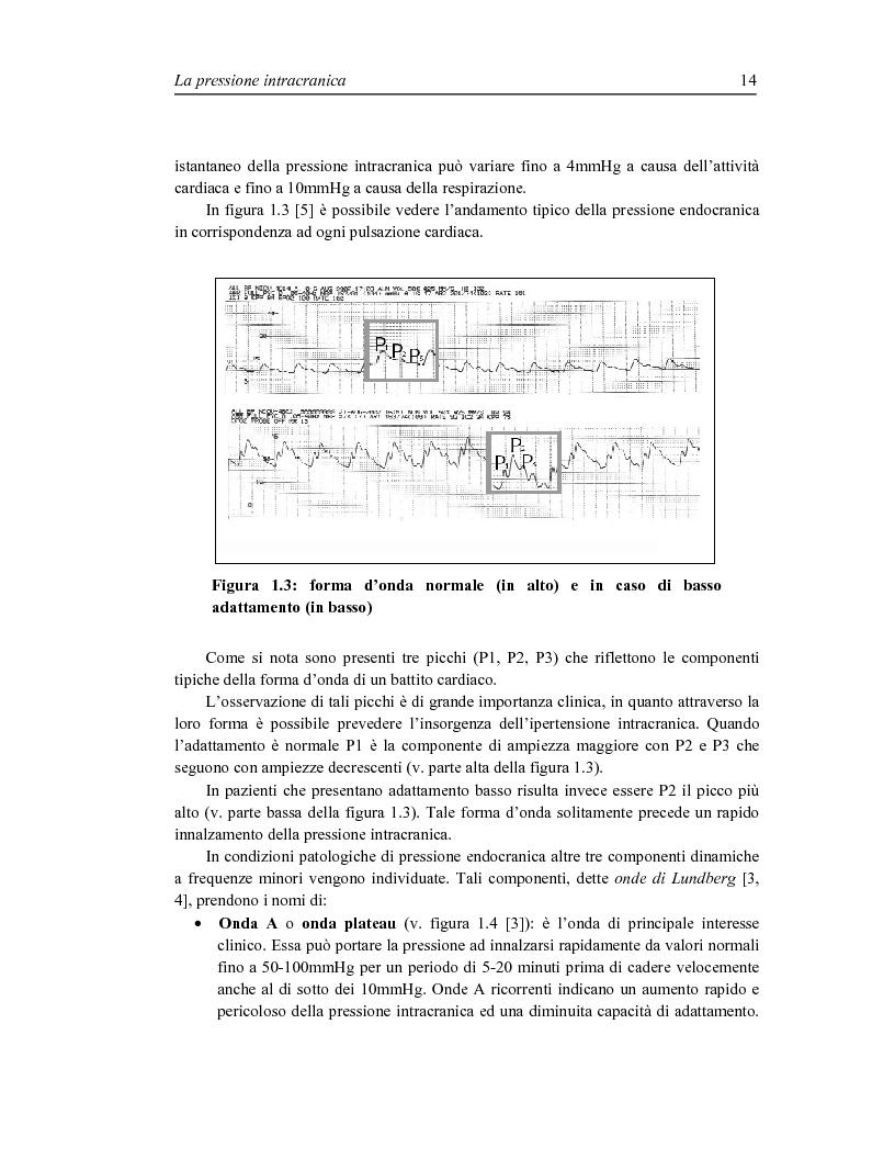 Anteprima della tesi: Sviluppo di un sistema wireless per la misura della pressione intracranica, Pagina 7