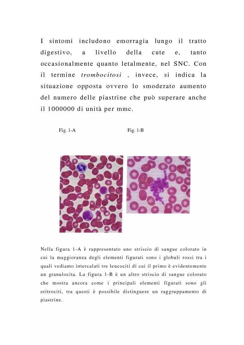 Anteprima della tesi: Porpora Trombocitopenica Idiopatica, Pagina 4