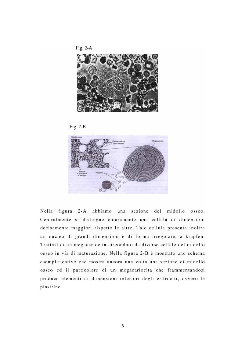 Anteprima della tesi: Porpora Trombocitopenica Idiopatica, Pagina 6