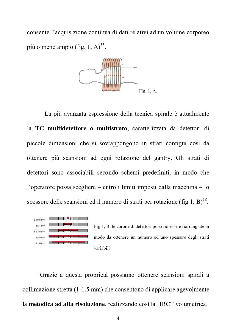 Anteprima della tesi: TC spirale ad alta risoluzione nello studio del parenchima polmonare, Pagina 4